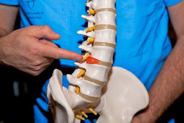 Межпозвоночная грыжа пояснично-крестцового отдела позвоночника: симптомы и лечение без операции