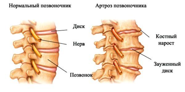 Артроз пояснично крестцового отдела позвоночника лечение недуга