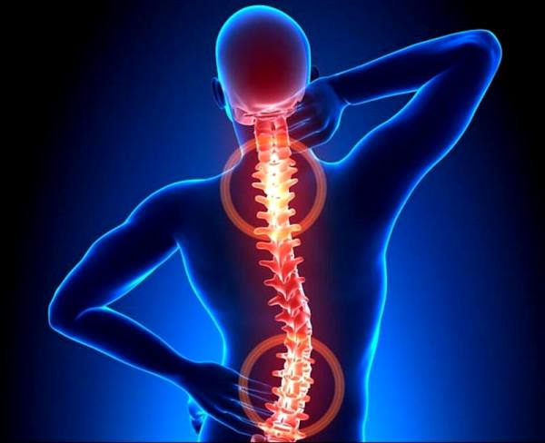 Почему возникает боль в верхней части спины??