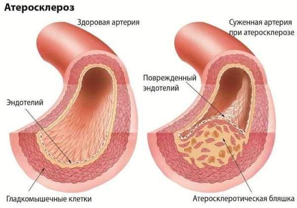 причиной боли в пояснице может быть атеросклероз сосудов