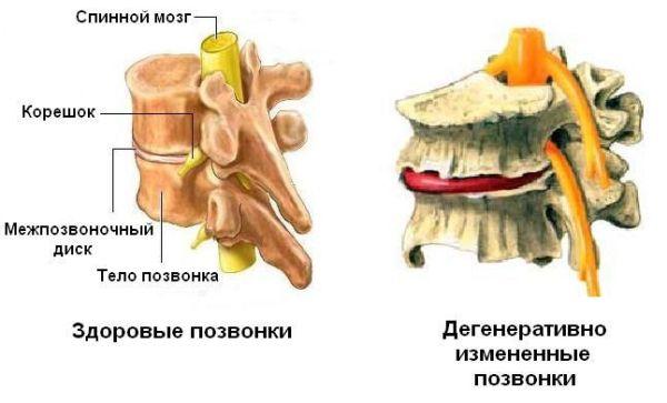 Диагноз дегенеративно дистрофические изменения пояснично крестцового отдела
