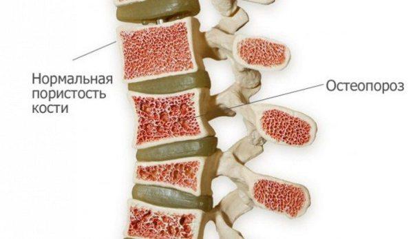 Остеопороз у женщин: симптомы и лечение, причины возникновения, профилактика остеопороза у пожилых женщин после 50