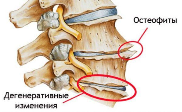 Спондилез пояснично крестцового отдела позвоночника симптомы