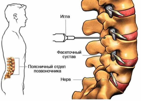 Какие уколы делают при остеохондрозе шейного отдела
