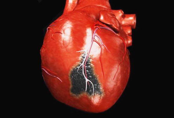 инфаркт может быть причиной боли в груди и спине