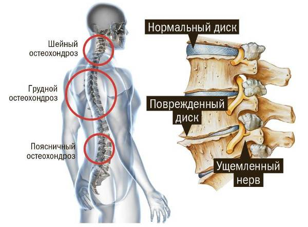 боли в сердце чаще всего возникают при грудном остеохондрозе