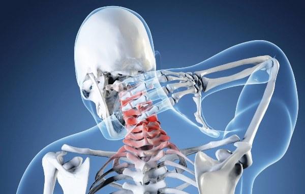 vertebro bazilyarnaya nedostatochnost - tratamento e sintomas da insuficiência vertebro-basilar